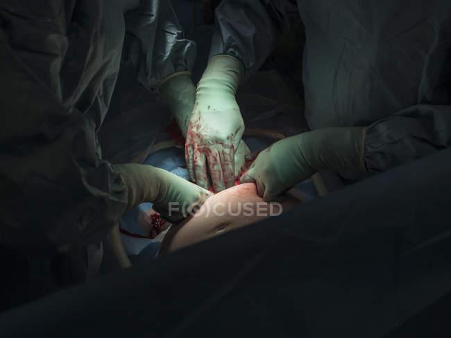 Surgeons performing caesarean section — Stock Photo