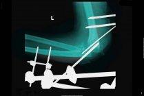 Крупним планом постріл рентгенівського показ металевої арматури — стокове фото