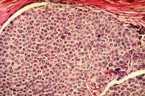Тканини молочної залози з ракові клітини — стокове фото