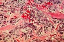 Micrografía electrónica de barrido del tejido canceroso de la mama - foto de stock