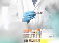Wissenschaftler überprüft Informationen über Blutproben, die für klinische Tests im Labor bereit stehen — Stockfoto