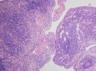 Micrografía electrónica de exploración de la artritis reumatoide de la articulación que muestra inflamación e hiperplasia — Stock Photo