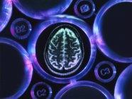 Investigación sobre Alzheimer y demencia, un escáner cerebral en bandeja de múltiples pozos utilizado para experimentos de investigación en laboratorio - foto de stock