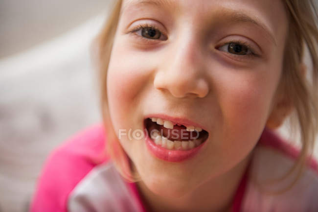 Girl with missing tooth — Stock Photo