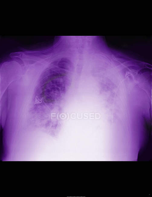 Closeup shot of x-ray of lung with mesothelioma — Stock Photo