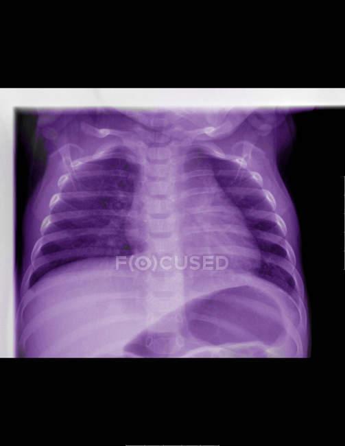 Bouchent la vue des rayons x d'une gastro-entérite virale — Photo de stock
