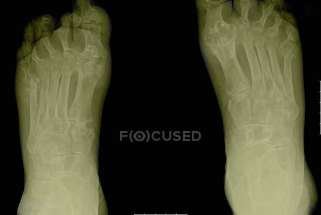Closeup Aufnahme von x-ray arthritischen Füße — Stockfoto