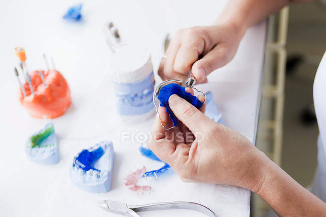 Male hands fixing tooth bracket — Stock Photo
