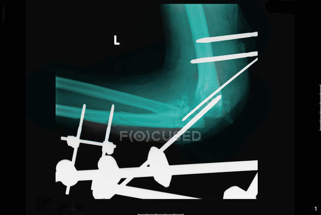Closeup shot de radiographie montrant des luminaires métalliques — Photo de stock