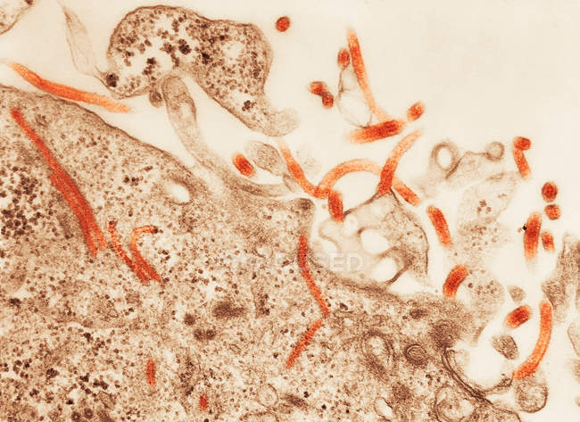 Transmission electron micrograph of Ebola virus — Stock Photo