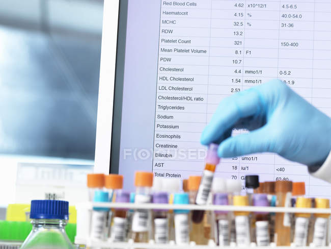 Hand of pathologist checking medical samples — Stock Photo