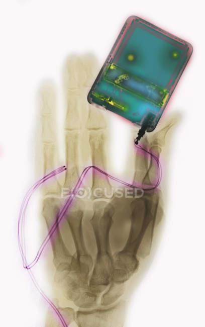 Röntgen-Shooting von Hand mit persönlichen MP3-player — Stockfoto