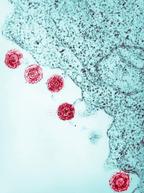 Electron micrograph of human herpes virus-6, HHV-6 — Stock Photo