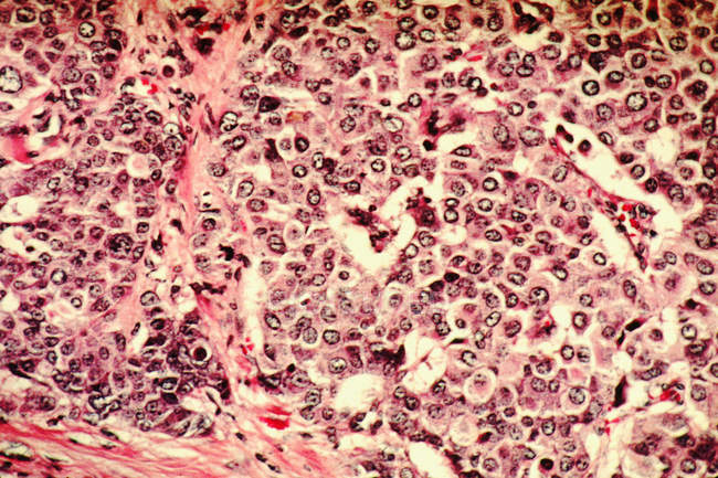 Micrografía electrónica de barrido de células cancerosas de mama - foto de stock