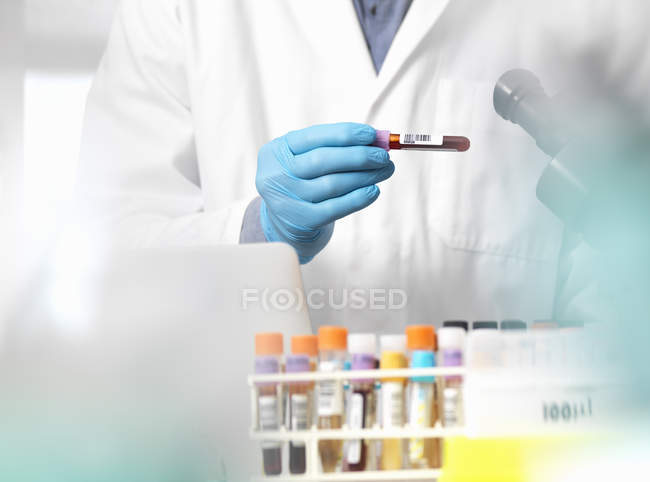 Scientist checking blood sample information ready for clinical testing in a laboratory — Stock Photo