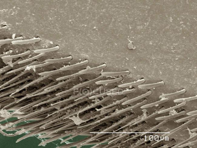 Farbige Rasterelektronenmikroskopie des Rückenschwimmerbeins — Stockfoto