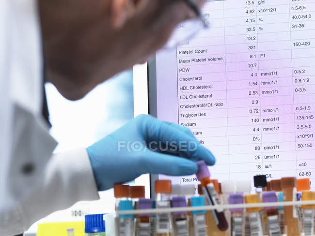Medical Testing, Haematologist checking medical samples including blood for testing with results on the computer screen — Stock Photo