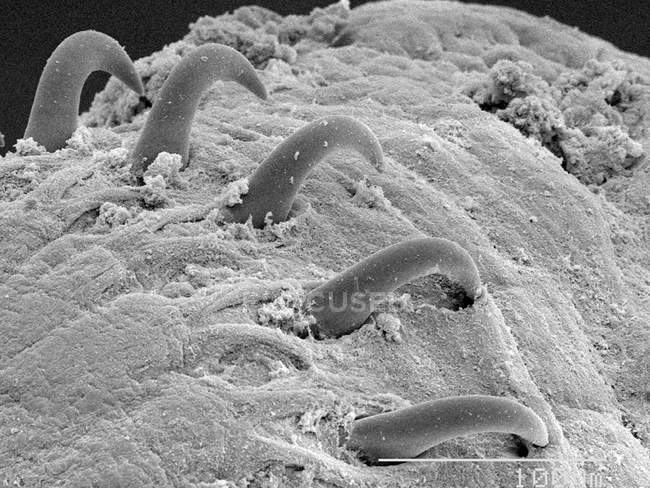 Scanning electron micrograph of tapeworm, 5000px — Stock Photo