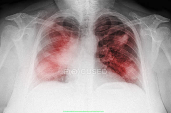Closeup shot of chest x-ray of mature woman smoker — Stock Photo