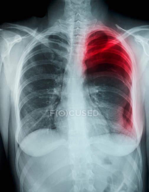 Cliché rapproché du pneumothorax spontané par radiographie pulmonaire — Photo de stock