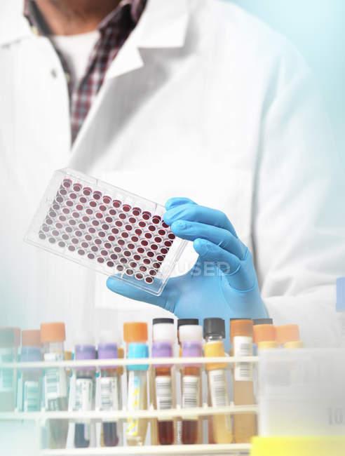 Wissenschaftler hält Blutproben im Labor — Stockfoto