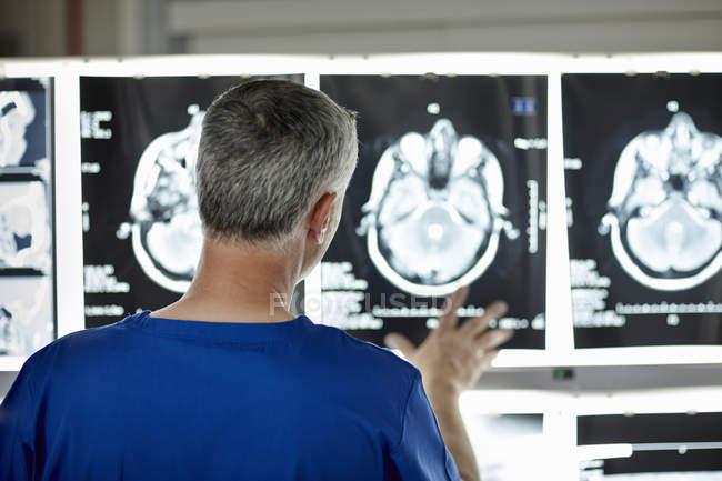 Visão traseira do radiologista masculino olhando para varreduras cerebrais — Fotografia de Stock