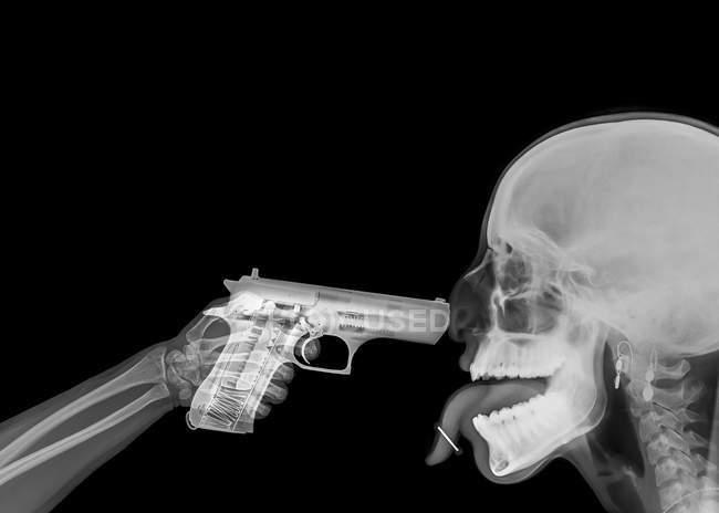 Imagen de rayos X del arma apuntando a mano en el cráneo masculino adulto medio - foto de stock