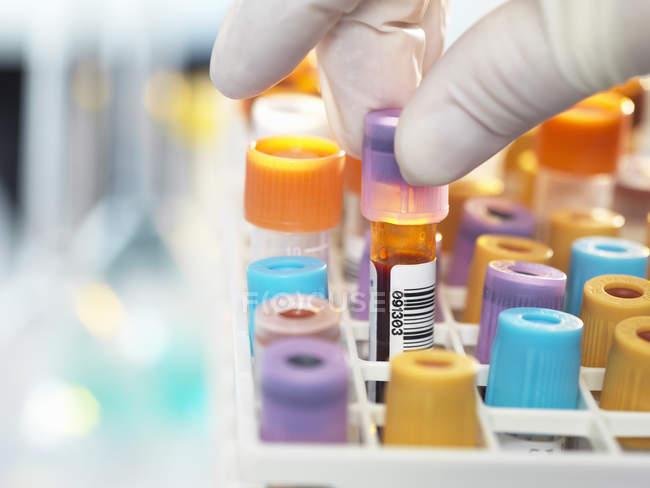 Лаборант готовит образец крови для медицинского тестирования в лаборатории — стоковое фото