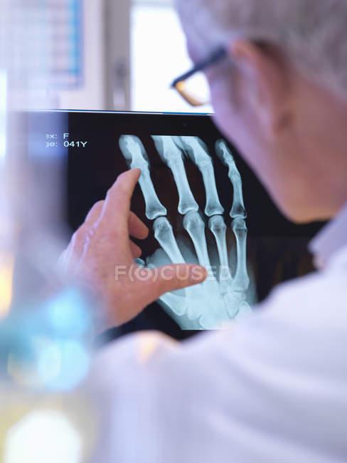 Radiografista a ver raio-X da fractura da mão — Fotografia de Stock