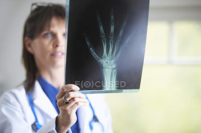 Médico olhando para a imagem de raio-x da mão — Fotografia de Stock
