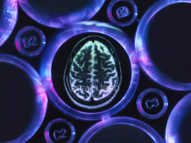 Alzheimer's and dementia research, a brain scan in multi well tray used for research experiments in laboratory — Stock Photo