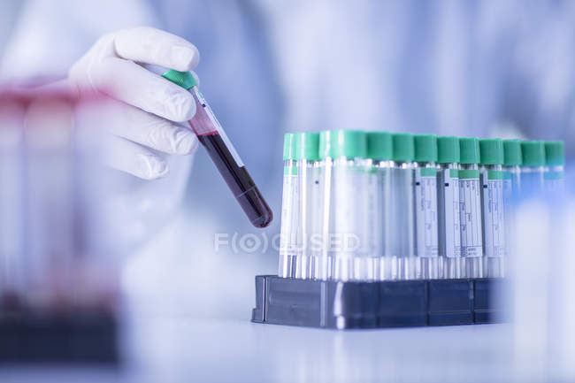 Laboratory worker placing liquid filled test tube in rack. close-up — Stock Photo