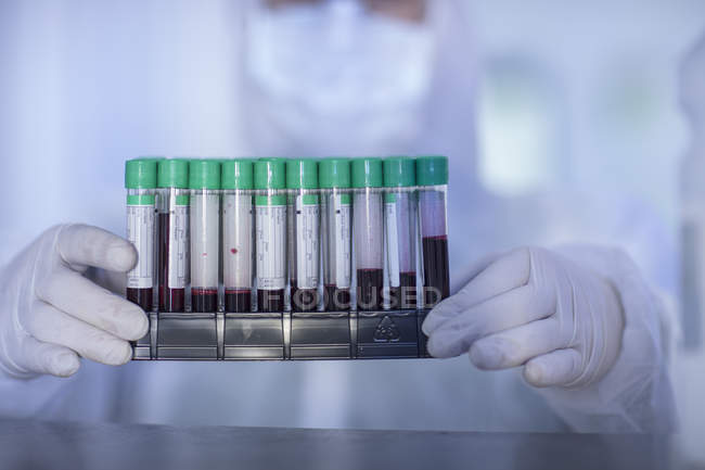 Laboratory worker holding test tube rack, close-up — Stock Photo