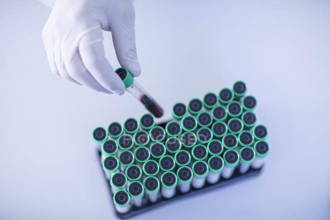 Laboratory worker placing liquid filled test tube into rack, elevated view — Stock Photo