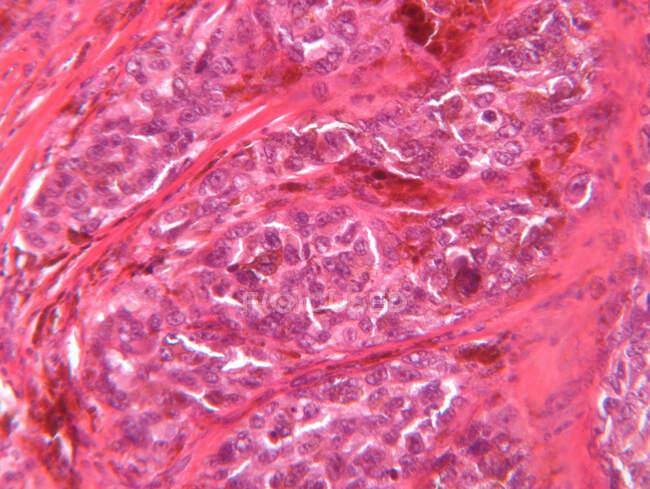 Visão microscópica do melanoma maligno — Fotografia de Stock