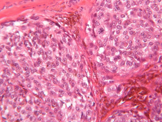 Vista del microscopio del melanoma maligno - foto de stock
