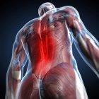 Visuelle Wiedergabe von Rückenschmerzen — Stockfoto