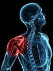 Localización del dolor en la articulación del hombro - foto de stock