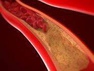 Arterie teilweise durch Atherom blockiert — Stockfoto
