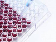 Blood samples ready for analysis — Stock Photo