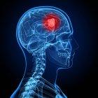Визуальный рендеринг рака мозга — стоковое фото