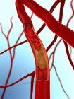 Artery partially blocked by atheroma — Stock Photo