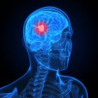 Visual render of Brain cancer — Stock Photo
