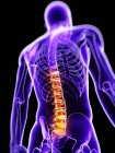 Pain in thoracic section of spine — Stock Photo