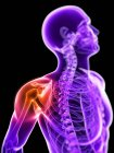 Localization of pain in shoulder joint — Stock Photo
