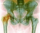 Cadera antes de la cirugía de reemplazo de cadera, rayos X - foto de stock