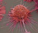 Macrófago humano activado - foto de stock