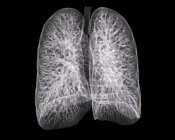 Healthy lungs of a 30 year old patient — Stock Photo
