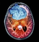 Coloured computed tomography (CT) scan of the brain of a 25 year old patient with a meningioma (blue). — стоковое фото