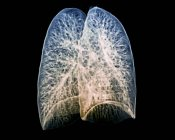 Tomografía computarizada (TC) 3D coloreada de los pulmones sanos de un paciente de 30 años . - foto de stock